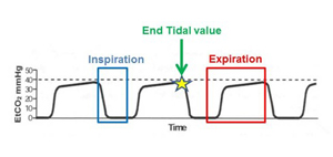 The Critical Role Of Capnography   Bound Tree