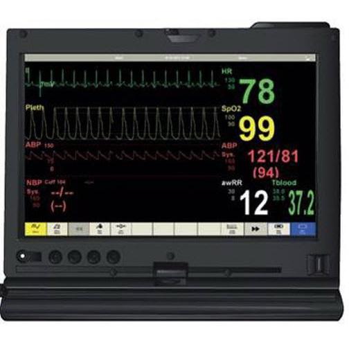 SimPad™ Patient Monitor Software License