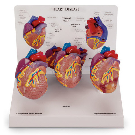 Mini Heart Set Models, 3-Piece