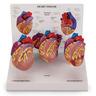Mini Heart Set Models, 3-Piece