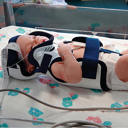 Papoose® Infant Immobilizer with PO Front and Pads, Infant Up to 3 Months