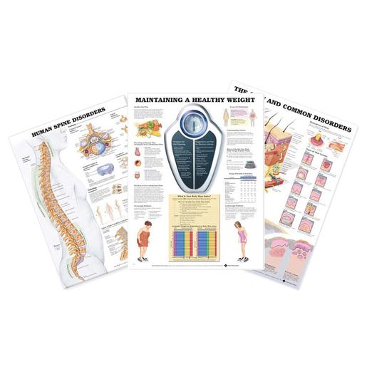 Understanding Diseases Charts