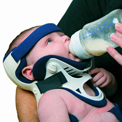 Ossur<sup>®</sup> Papoose Infant Spinal Immobilizer